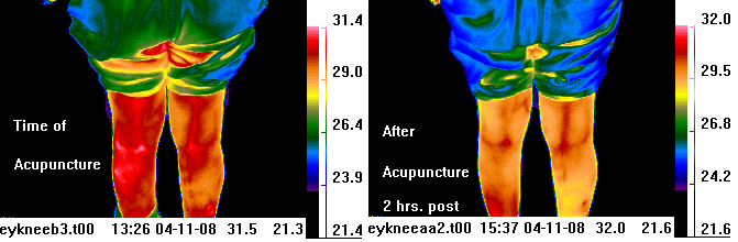 infrared image before &                                 after acupuncture