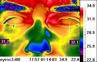 Thermal image of the                                             face
